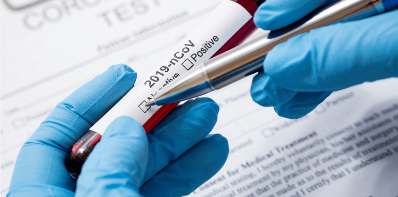 instituto butantã espera zerar fila de testes de covid-19
